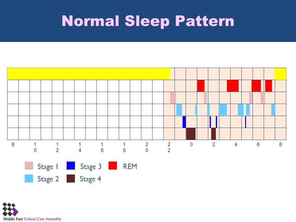 Normal Sleep Pattern Stage 1 Stage 3 REM Stage 2 Stage 4 8 10 12 14 16