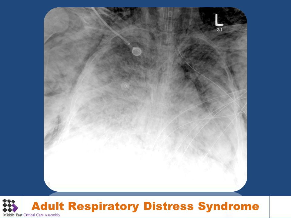 Distress adult respiratory