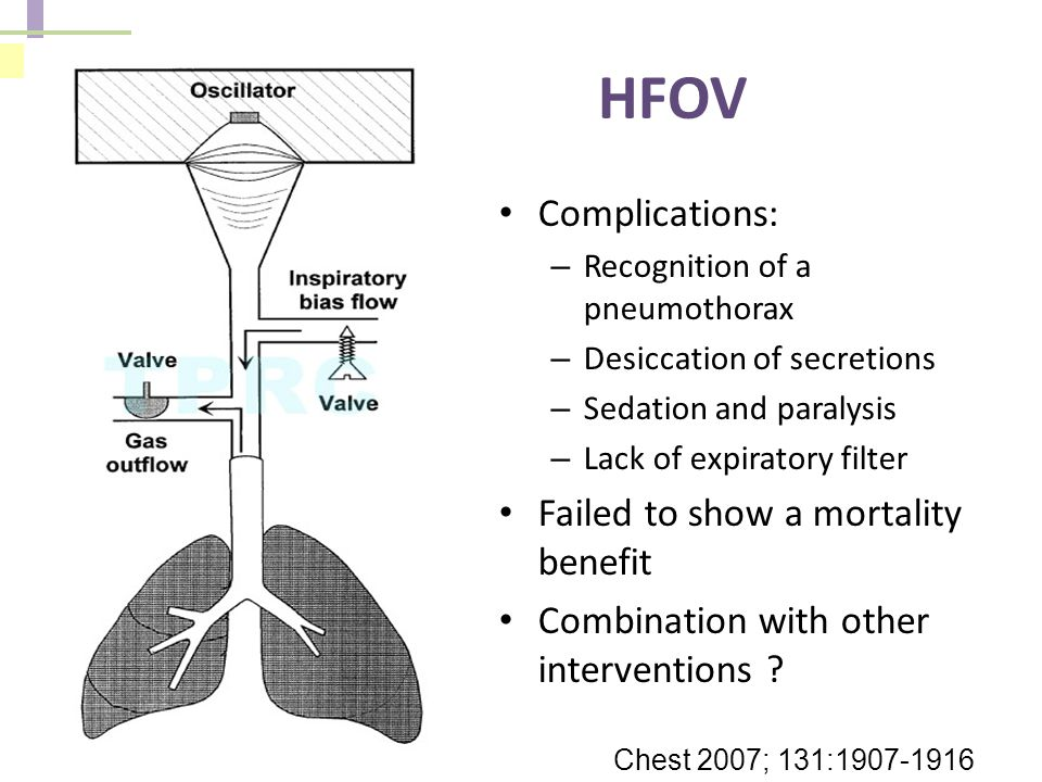 HFOV Complications: Failed to show a mortality benefit
