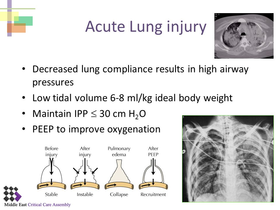 Acute Lung injury Decreased lung compliance results in high airway pressures. Low tidal volume 6-8 ml/kg ideal body weight.