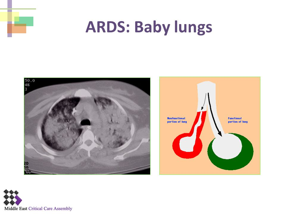 ARDS: Baby lungs