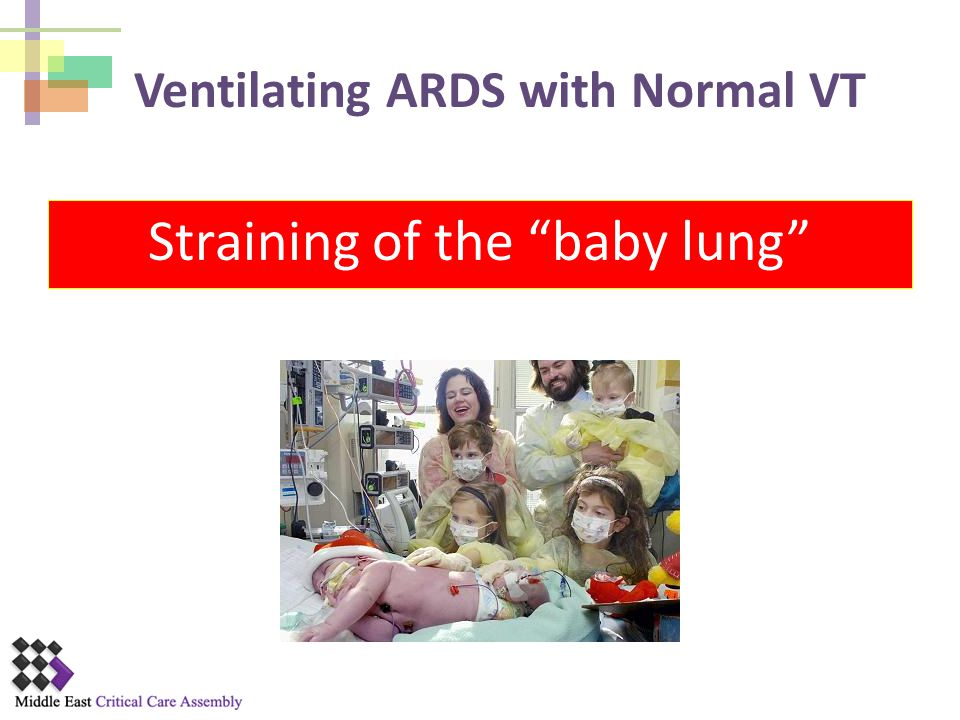 Ventilating ARDS with Normal VT