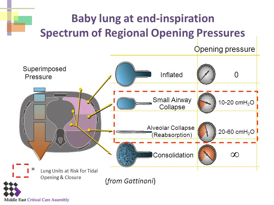 Baby lung at end-inspiration Spectrum of Regional Opening Pressures