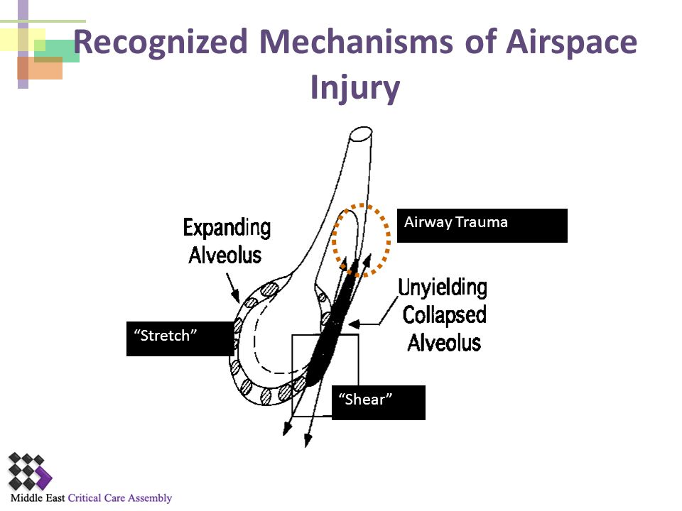 Recognized Mechanisms of Airspace Injury