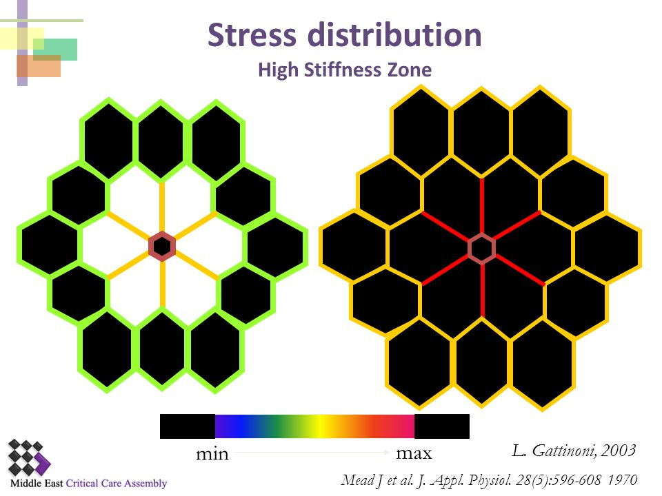 Stress distribution High Stiffness Zone