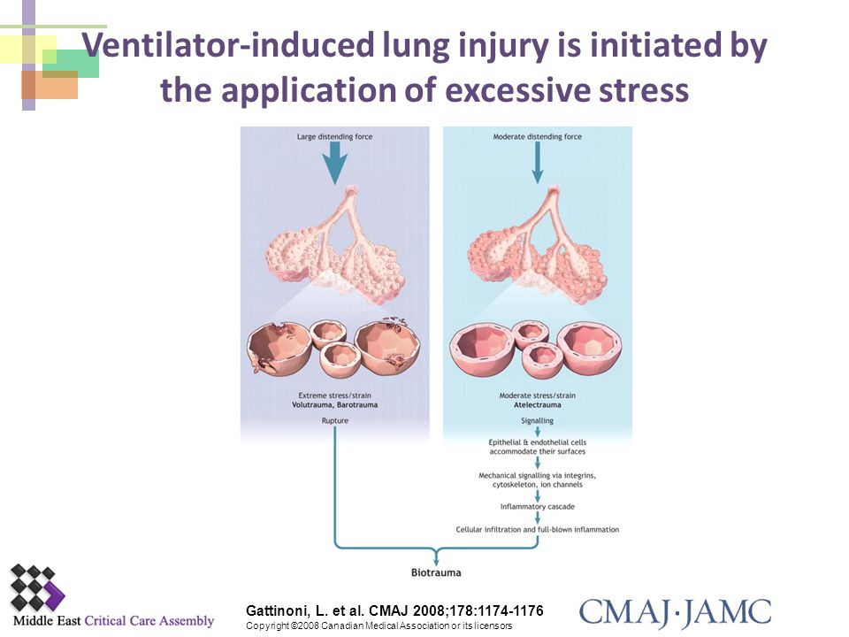 Ventilator-induced lung injury is initiated by the application of excessive stress