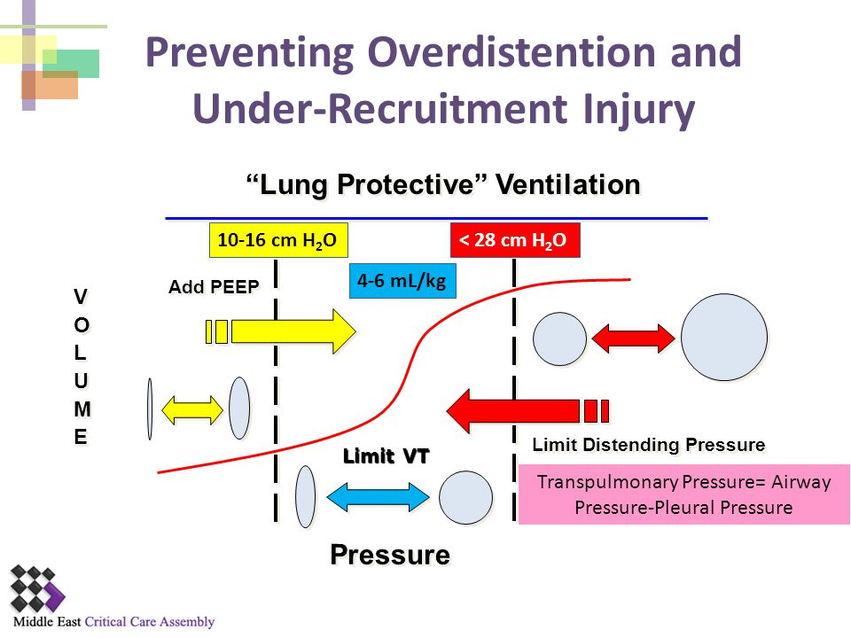 Preventing Overdistention and Under-Recruitment Injury
