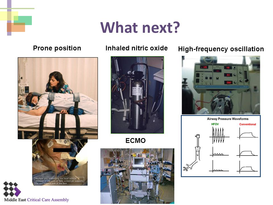 What next Prone position Inhaled nitric oxide