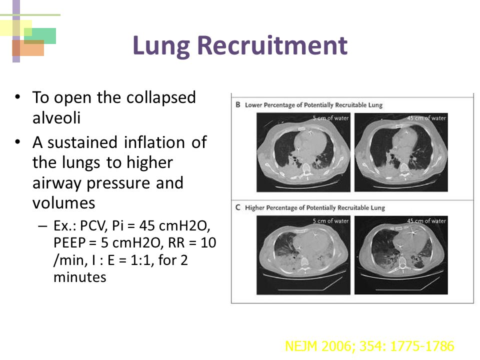 Lung Recruitment To open the collapsed alveoli