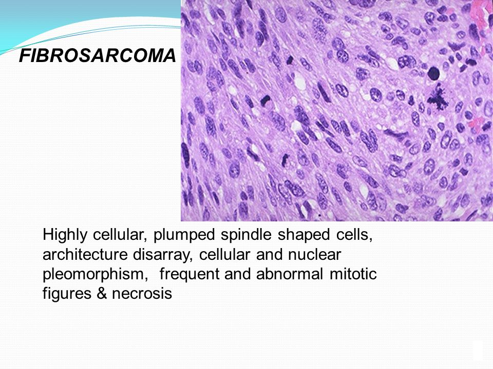 FIBROSARCOMA Highly cellular, plumped spindle shaped cells, architecture disarray, cellular and nuclear pleomorphism, frequent and abnormal mitotic.