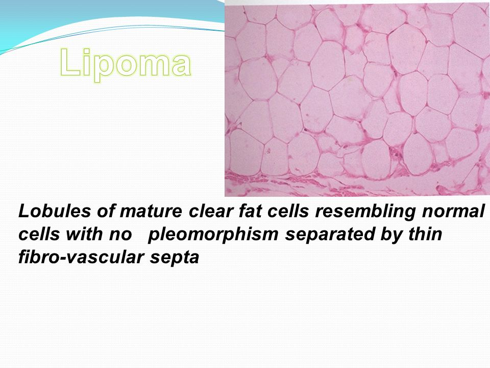 Lipoma Lobules of mature clear fat cells resembling normal cells with no pleomorphism separated by thin fibro-vascular septa.