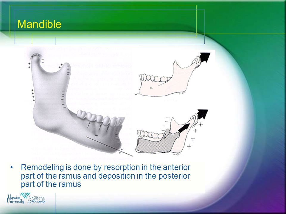 Mandible Remodeling is done by resorption in the anterior part of the ramus and deposition in the posterior part of the ramus.