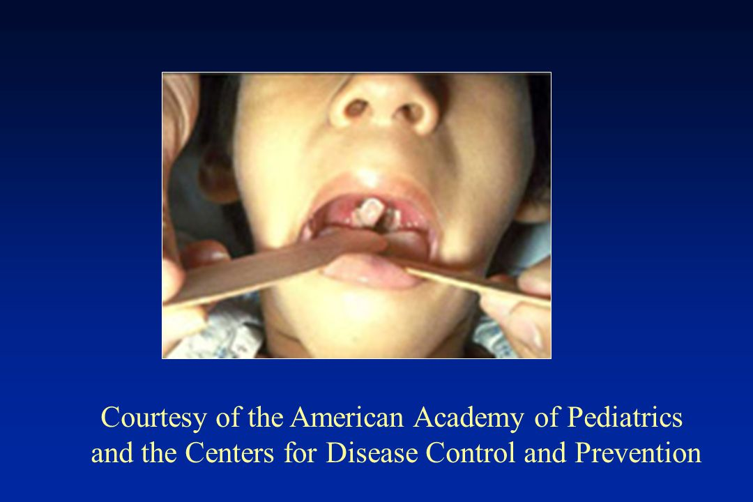 Courtesy of the American Academy of Pediatrics