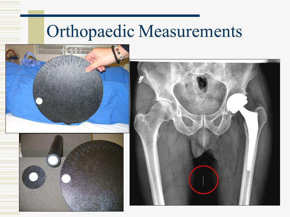 Qc in a digital world john aldrich phd fccpm department of for Orthopedic templating software