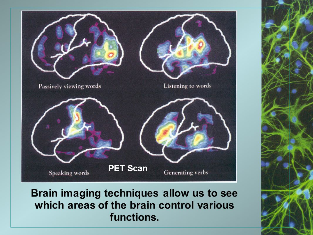 PET Scan Brain imaging techniques allow us to see which areas of the brain control various functions.