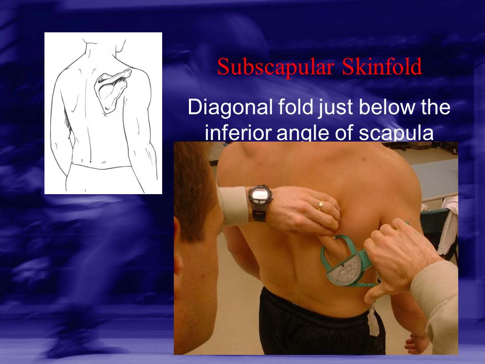 Diagonal fold just below the inferior angle of scapula