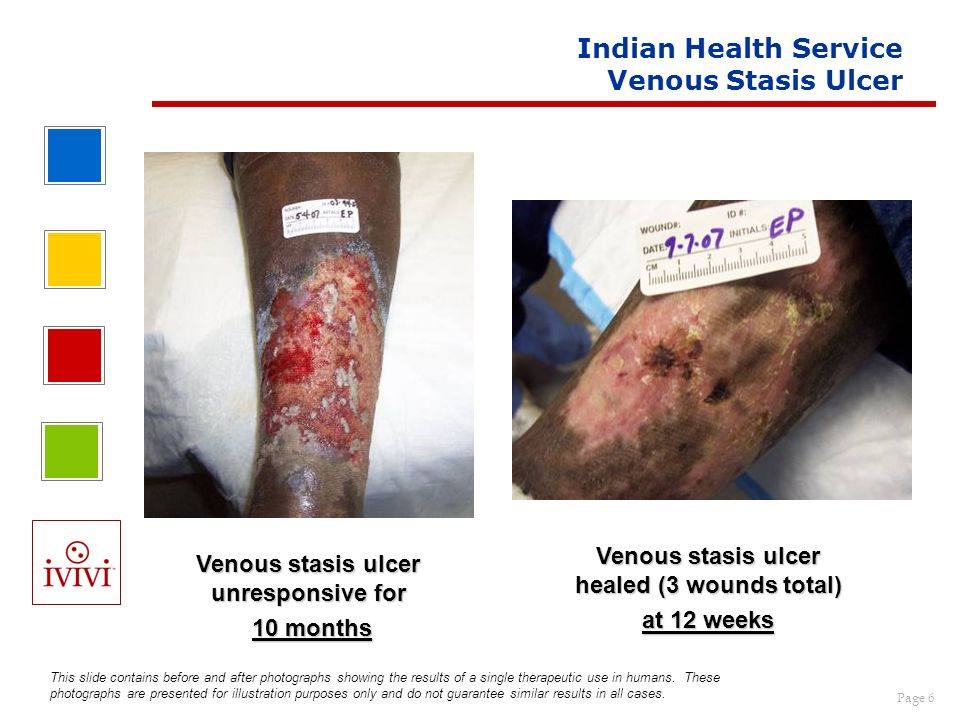 Indian Health Service Venous Stasis Ulcer