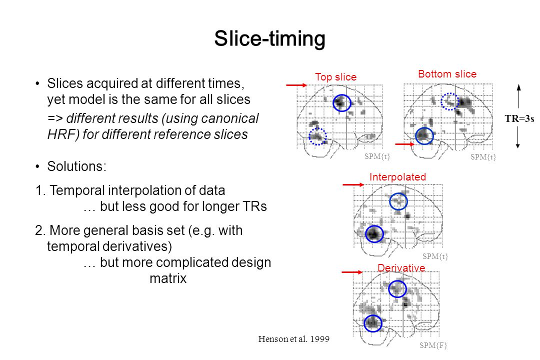 Slice-timing Top slice. Bottom slice. Slices acquired at different times, yet model is the same for all slices.