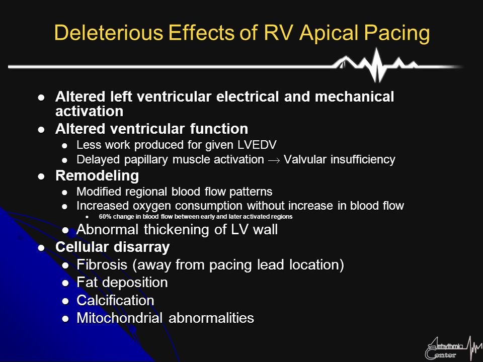 Deleterious Effects of RV Apical Pacing