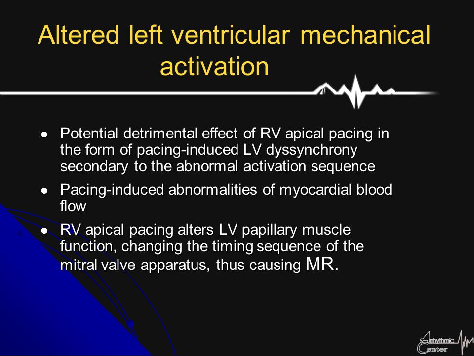Altered left ventricular mechanical activation