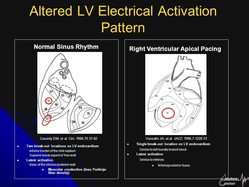 Altered LV Electrical Activation Pattern