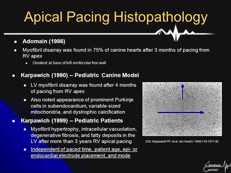 Apical Pacing Histopathology