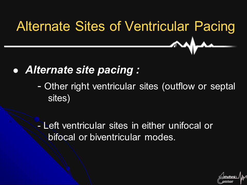 Alternate Sites of Ventricular Pacing