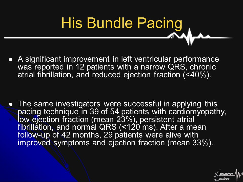 His Bundle Pacing