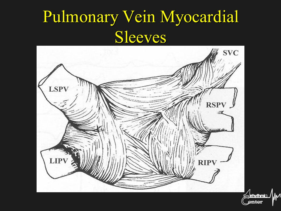 Pulmonary Vein Myocardial Sleeves