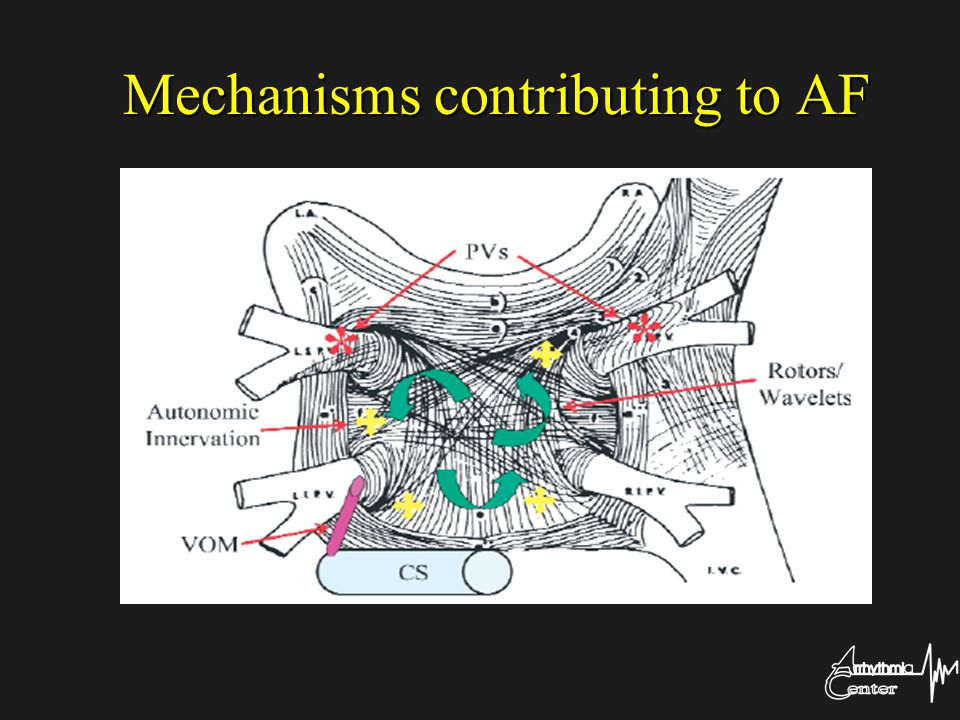 Mechanisms contributing to AF