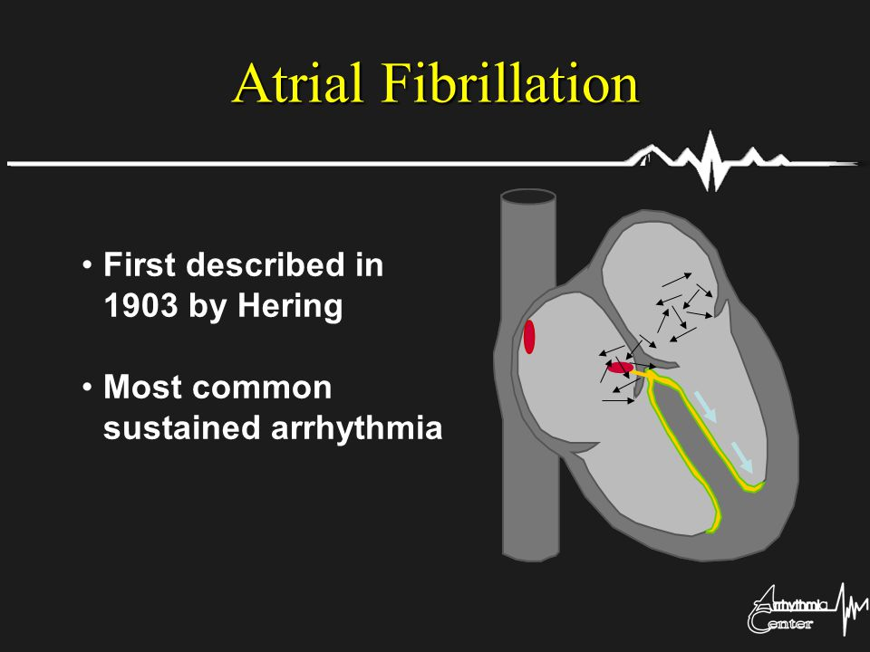 Atrial Fibrillation First described in 1903 by Hering