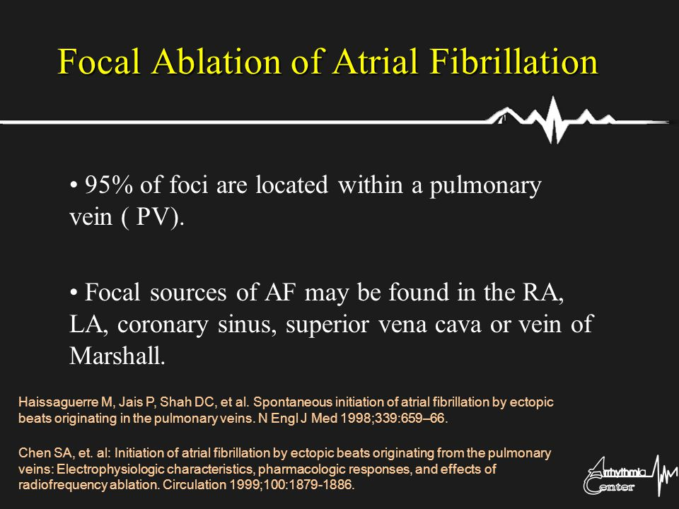 Focal Ablation of Atrial Fibrillation