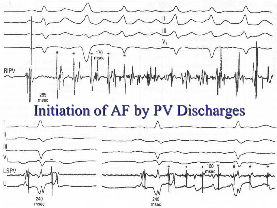 Initiation of AF by PV Discharges