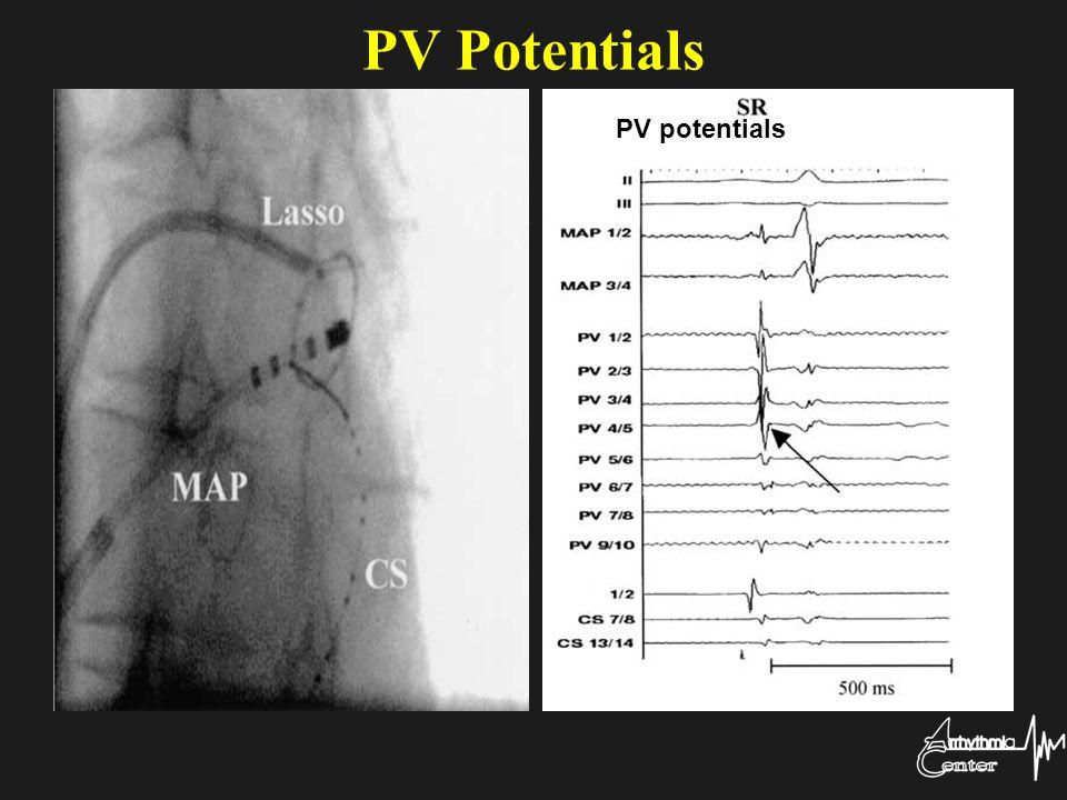 PV Potentials PV potentials