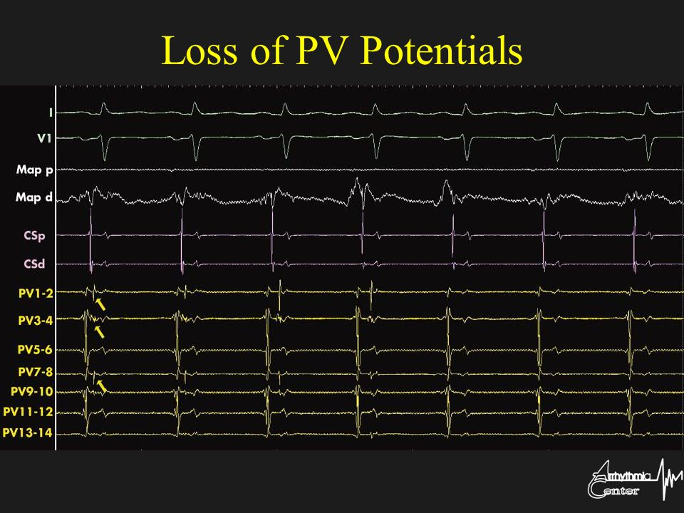 Loss of PV Potentials