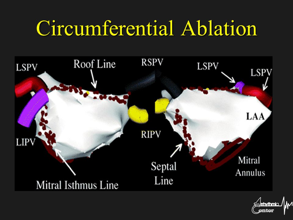 Circumferential Ablation