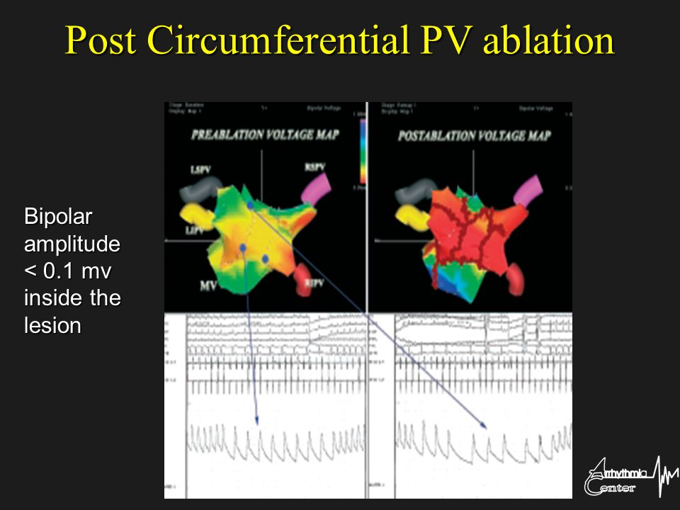 Post Circumferential PV ablation