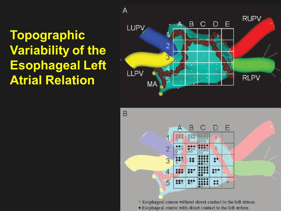Topographic Variability of the Esophageal Left Atrial Relation