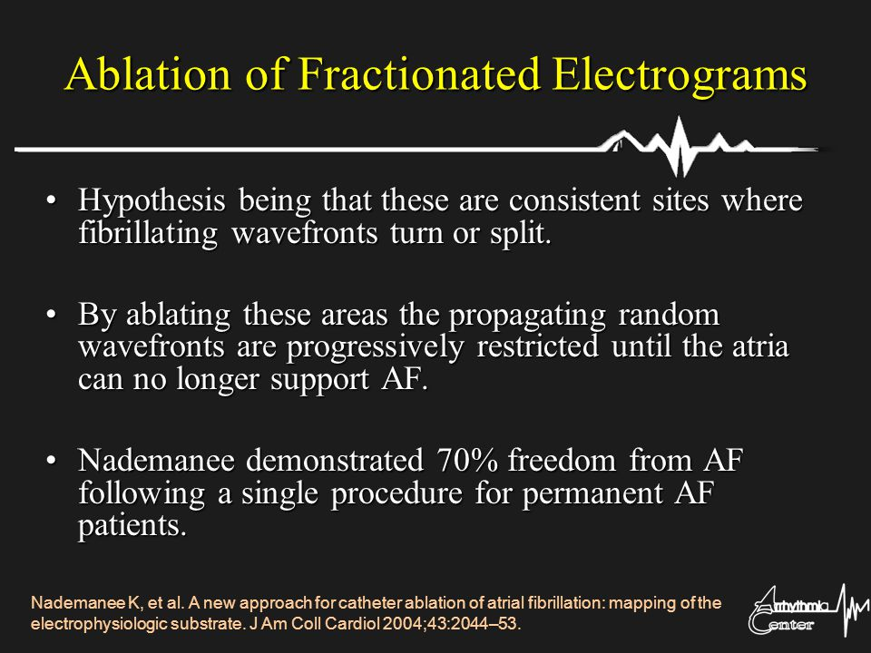 Ablation of Fractionated Electrograms