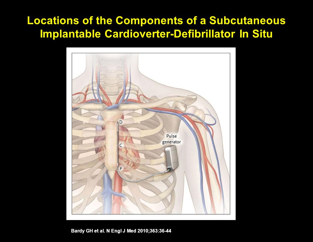 Locations of the Components of a Subcutaneous Implantable Cardioverter-Defibrillator In Situ