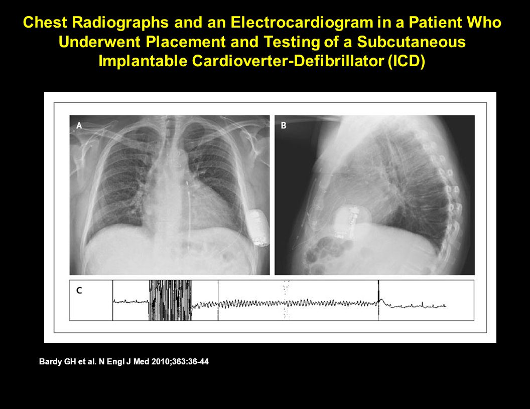 Chest Radiographs and an Electrocardiogram in a Patient Who Underwent Placement and Testing of a Subcutaneous Implantable Cardioverter-Defibrillator (ICD)‏