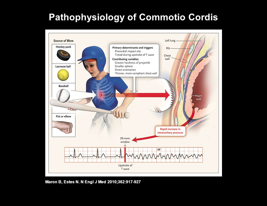 Pathophysiology of Commotio Cordis