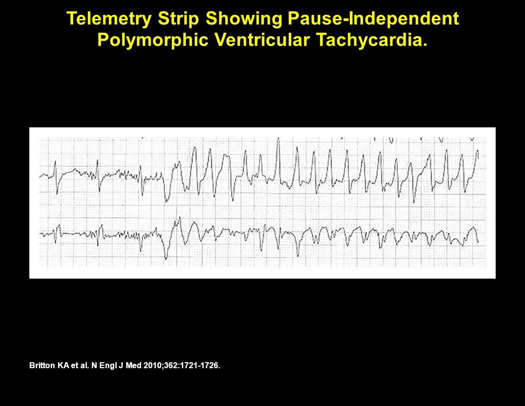 Telemetry Strip Showing Pause-Independent Polymorphic Ventricular Tachycardia.