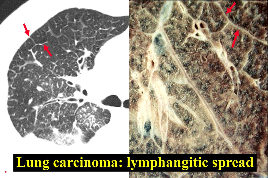 Lung carcinoma: lymphangitic spread