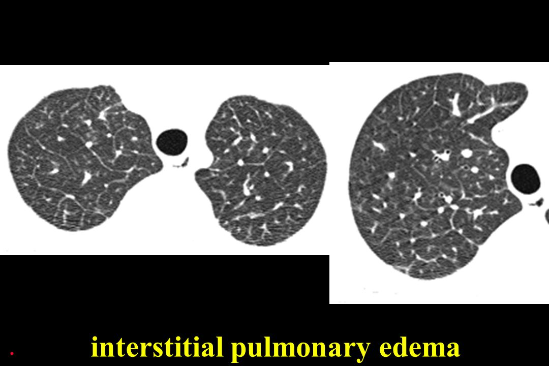 interstitial pulmonary edema