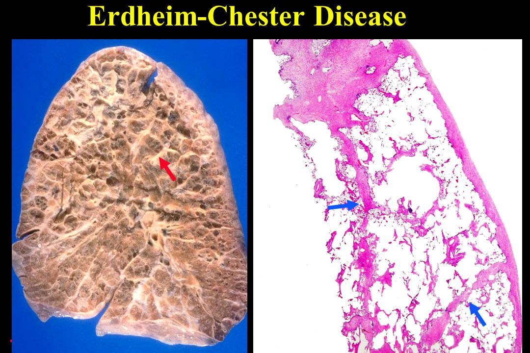 Erdheim-Chester Disease