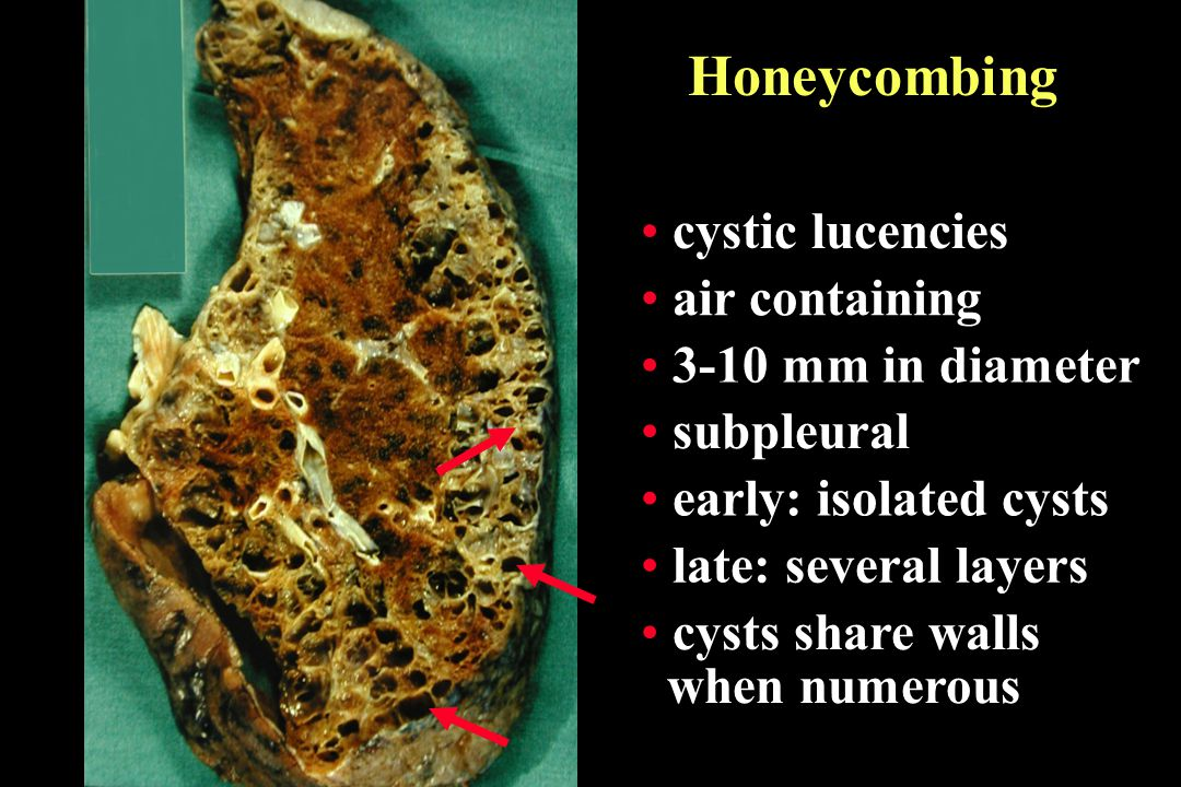 Honeycombing cystic lucencies air containing 3-10 mm in diameter