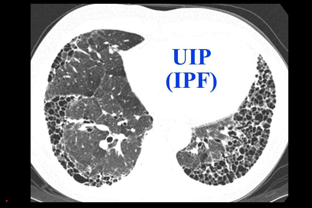 UIP (IPF) .
