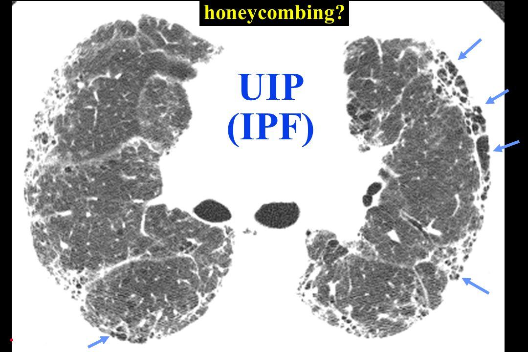 honeycombing UIP (IPF) .