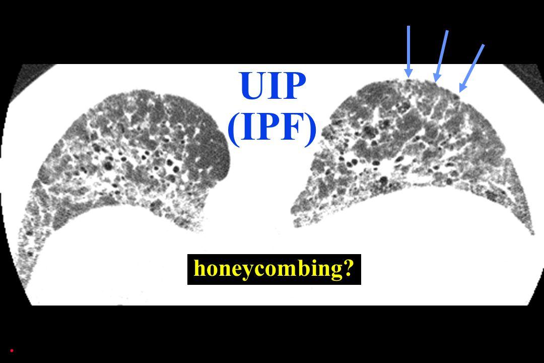 UIP (IPF) honeycombing .